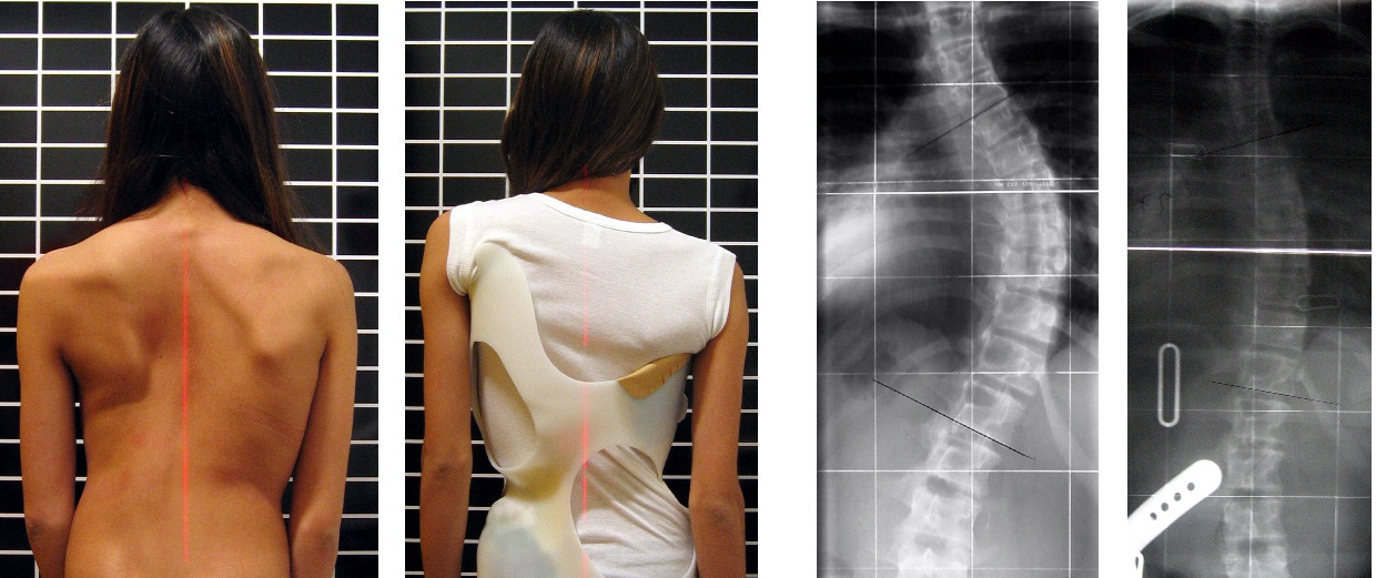 Successful Bracing for Scoliosis   Pediatric Physical Therapy